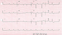 Electrocardiogram showing atrial fibrillation and left bundle branch block